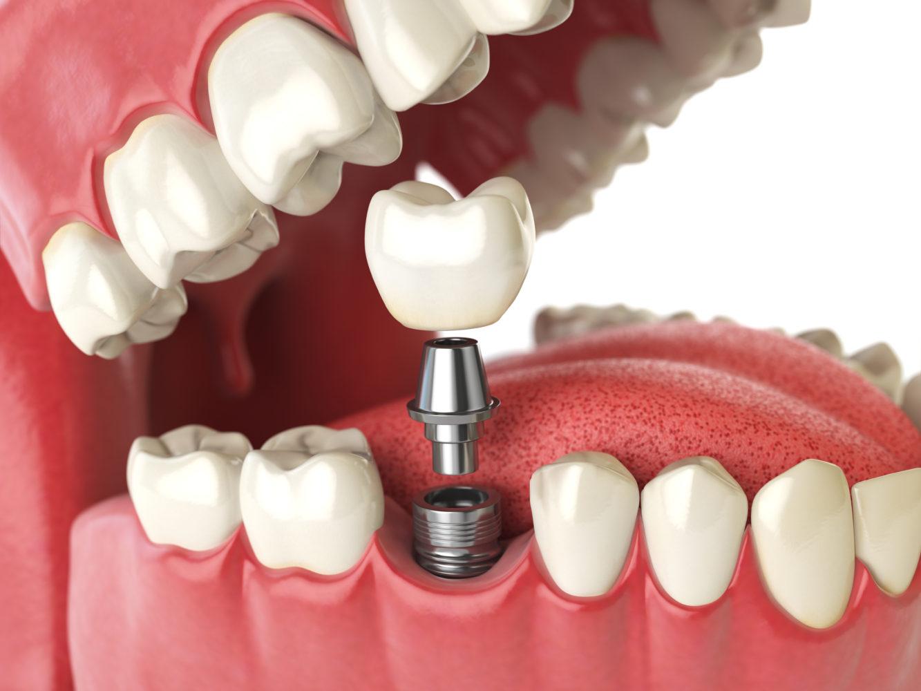 Inserare implant dentar bucuresti